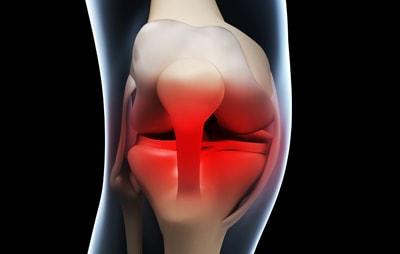 人工膝関節置換術のデメリット