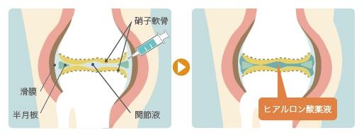 膝のヒアルロン酸注射