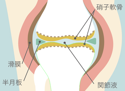 膝のロッキングは半月板の損傷が原因