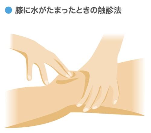 膝に水がたまったときの診断方法