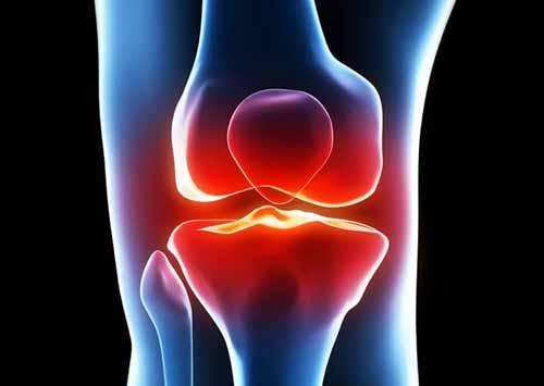 ランニングで起こる膝痛の症状