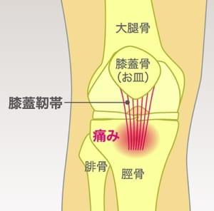 膝蓋靭帯炎とは