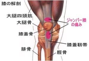 ジャンパー膝 説明