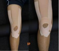 ジャンパー膝 テーピング 出典:body problem2-min