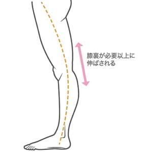反張膝だと膝裏が必要以上に伸ばされるという説明