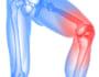 【膝のロッキング現象が起きたら】原因から治療法までまとめて解説