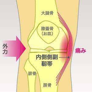 内側側副靭帯損傷
