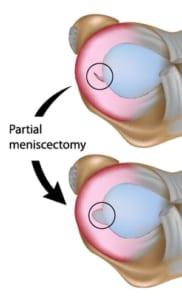 半月板切除術の適応
