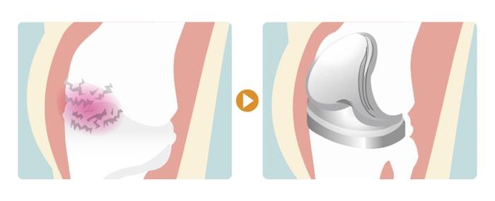 人工膝関節全置換術