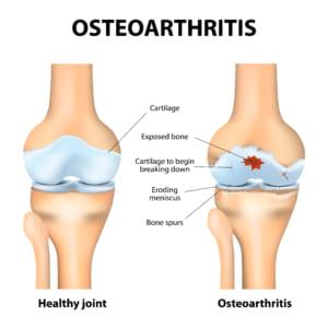 変形性膝関節症とは