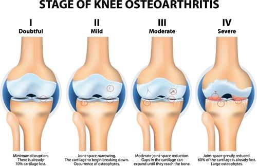 変形性膝関節症のK-L分類