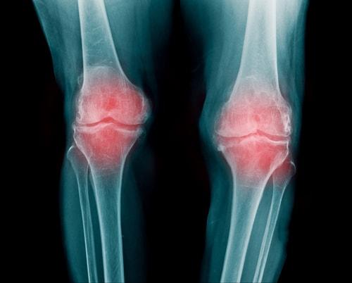 変形性膝関節症に対するPRP治療の効果