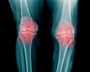 変形性膝関節症の原因のひとつO脚