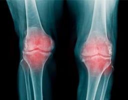 変形性膝関節症の代表的な症状と対処法【セルフチェックあり】