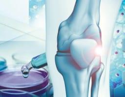 膝痛に新治療が続々登場!知っておくべき再生医療の注目ポイント
