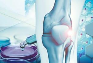 再生医療による膝痛治療