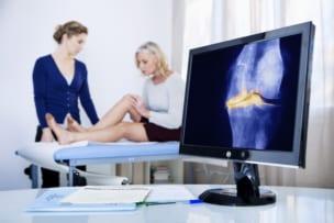 女性が変形性膝関節症になりやすい原因