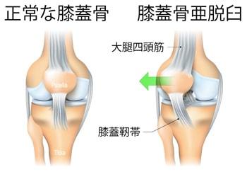 膝蓋骨亜脱臼とは