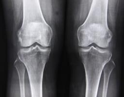膝の激痛「偽痛風」3段階の治療と効かないときにとるべき行動