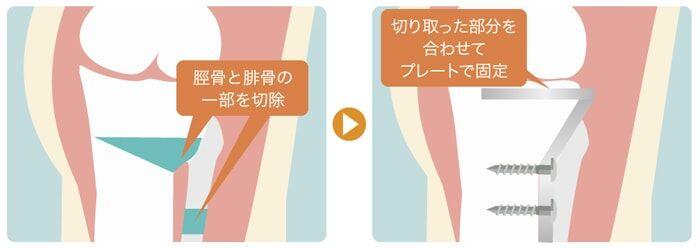 変形性膝関節症の骨切り手術:クローズドウェッジ法(O脚の場合:アプローチ部位は左足の外側)