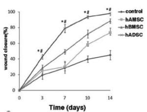 脂肪幹細胞は傷を早くきれいに修復する
