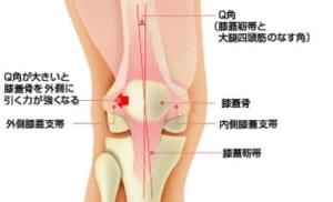 膝の脱臼とQ角