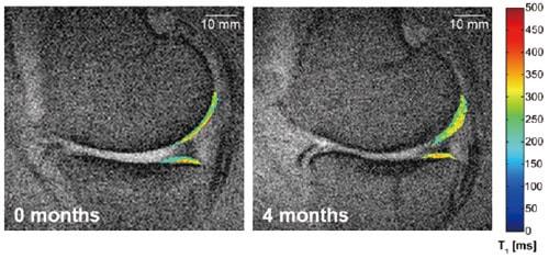 培養幹細胞治療前後の膝のMRI画像