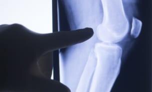 膝関節のレントゲン画像