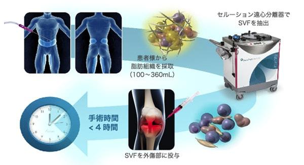 脂肪幹細胞による変形性膝関節症治療の流れ