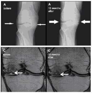 脂肪幹細胞治療前後の膝のレントゲン