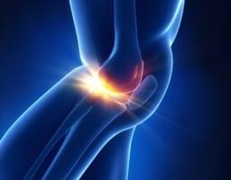 【変形性膝関節症の最新治療】患者が語る再生医療の効果とは?