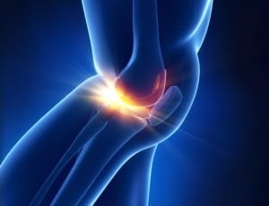 変形性膝関節症の再生医療