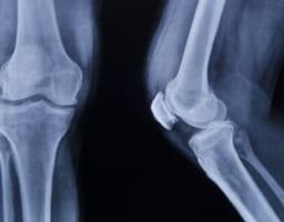 膝のお皿が割れる「膝蓋骨骨折」の手術やリハビリを知る必読書