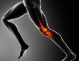 膝の外側の痛みで考えられる疾患と、自分でできる対処法