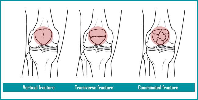 【膝のお皿が割れる!?】膝蓋骨骨折の手術やリハビリを知る ...