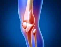 【膝上の痛みをセルフケア!】考えられる5つの疾患と対処法