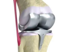 【人工膝関節置換術でよくある疑問】手術方法や費用もまとめて解説