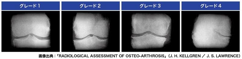 変形性膝関節症のグレード