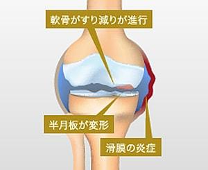 変形性膝関節症の炎症