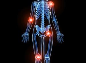 発症後の2年がカギ!関節リウマチの症状と治療前の基礎知識