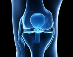 膝の冷えと痛みが年中続く!そんな人がまず実践すべき4つの対処法