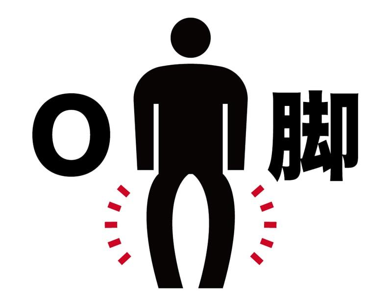 変形性膝関節症とO脚の負の連鎖を断ち切る専門家の矯正法とは?