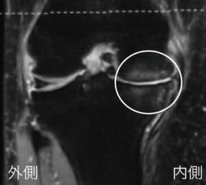 MRIで確認された膝関節の浮腫
