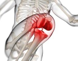 右膝が痛い原因【専門家の考えた答えとは?】年代別に主な疾患も紹介