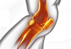 膝関節の拘縮