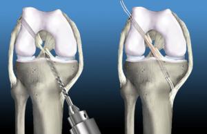 前十字靭帯の再建手術
