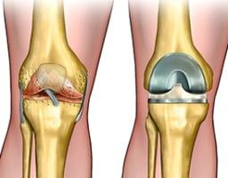 年齢は問題?人工膝関節置換術を決断する前に考えたい選択肢