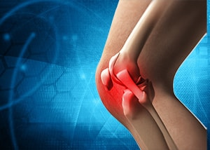 膝の関節炎の正体はコレ!治療前に押さえておくべきポイントも解説